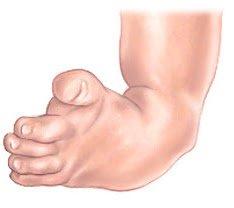 club-foot-lg