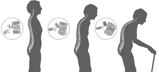 Progressive degeneration of spine due to Osteoporosis