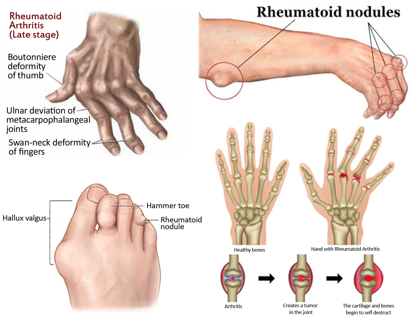 Depiction of how Rheumatoid Arthritis impacts bone joints