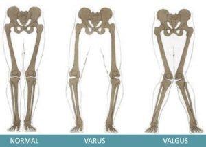 OA-Tri-Point-Stabilizer-Knee-Brace_DeformityDifference